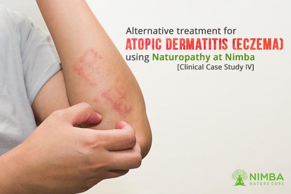 Alternative treatment for Atopic Dermatitis (Eczema)